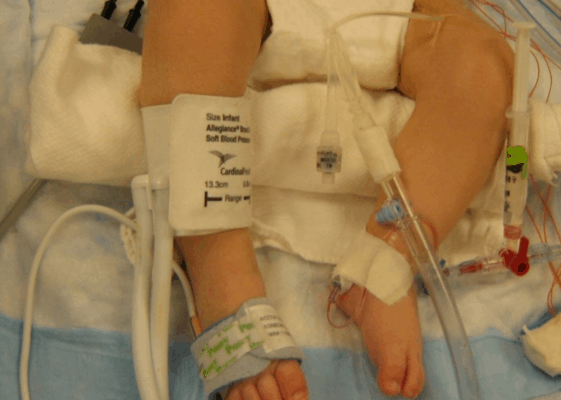 Caden's Feet: Walking the Path of Congenital Heart Defect {CHD Parent}