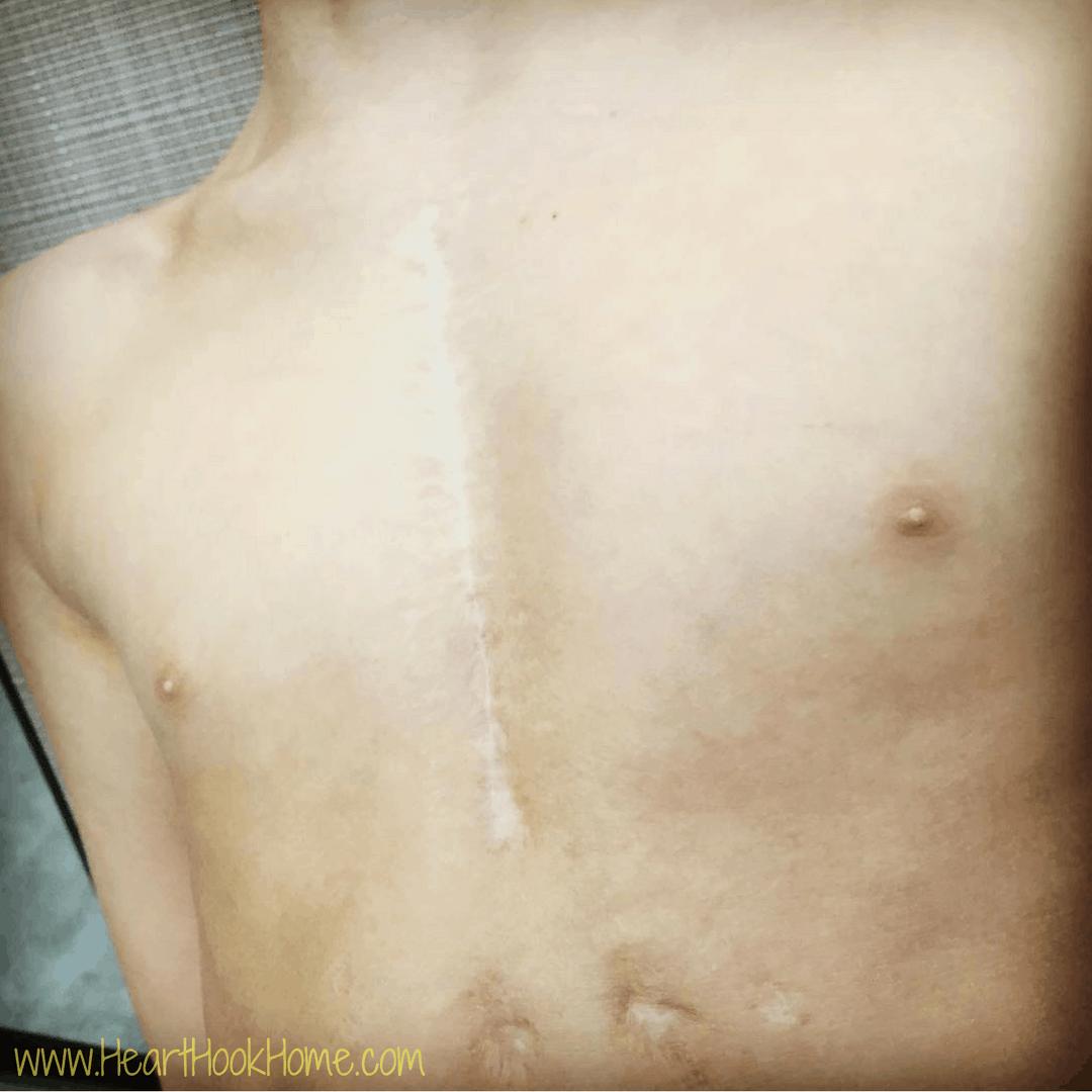 chest-scar