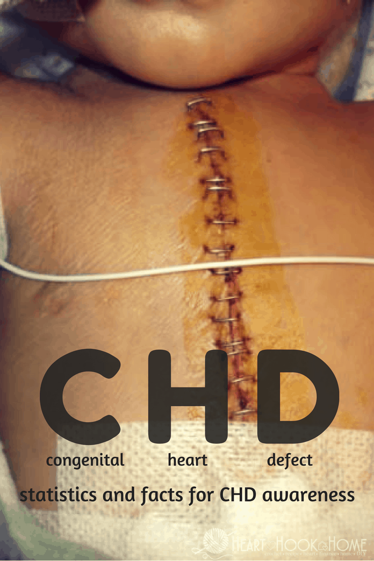 What is a Congenital Heart Defect? Statistics You Need To Know From a CHD Mom